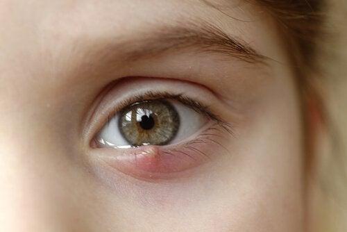 vagel i ögat vad göra