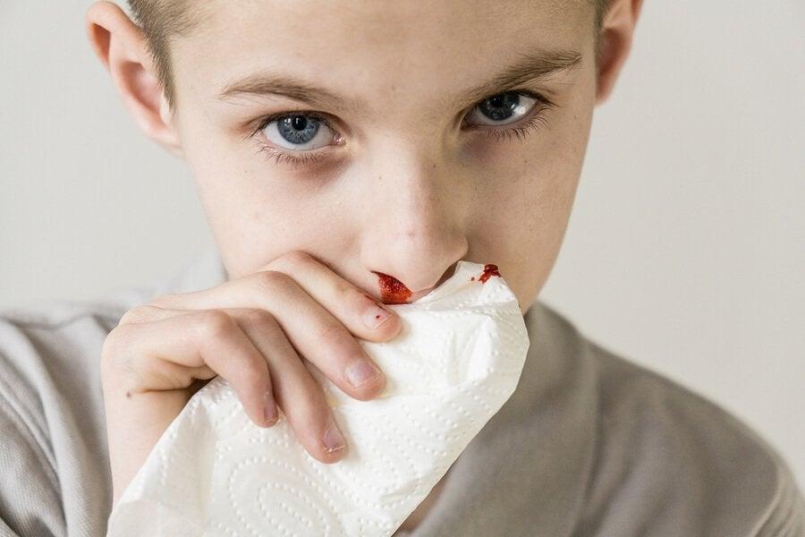 Näsblod hos barn: orsaker och behandling