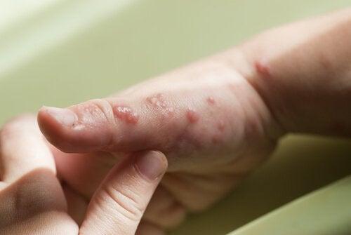 Herpes hos barn