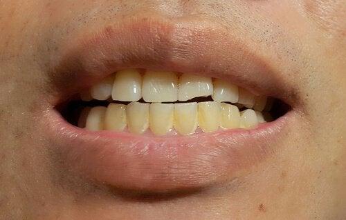 vita prickar på tänderna
