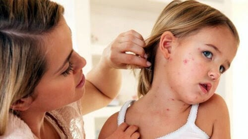 mamma visar upp halsen på flicka med mässling