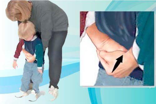En kvinna utför Heimlichmanövern på ett barn.