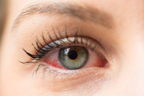 ögoninflammation vuxen hur länge