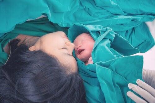 kvinna på operationsbordet med nyfödd baby bredvid sig