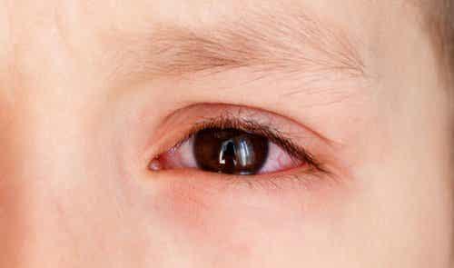 Hyposfagma hos barn - behöver du oroa dig?