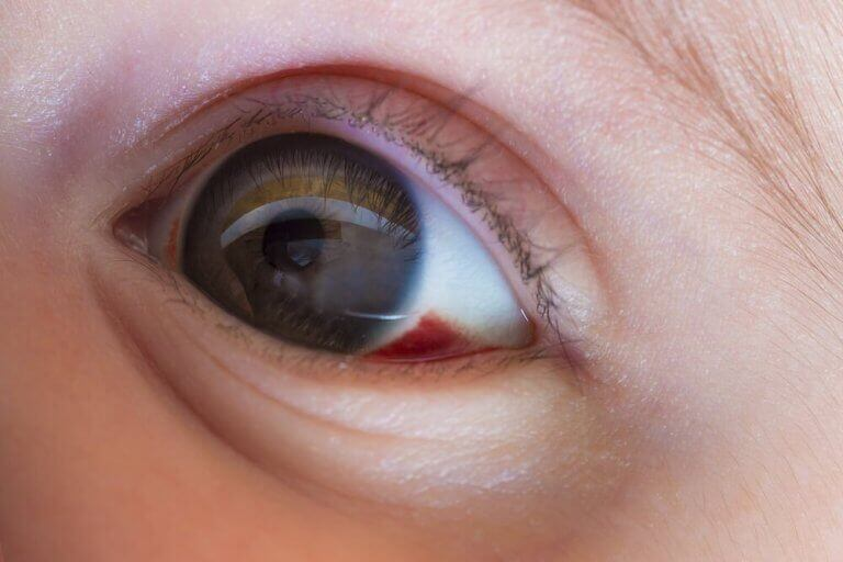 Röd fläck i ögat.