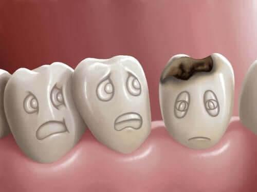Hål i tänderna och hur man förebygger dem