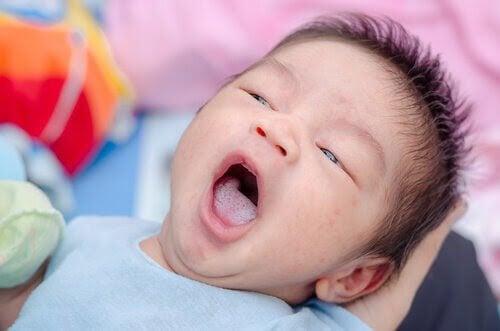 Candidiasis hos barn: Orsaker, symptom och förebyggande