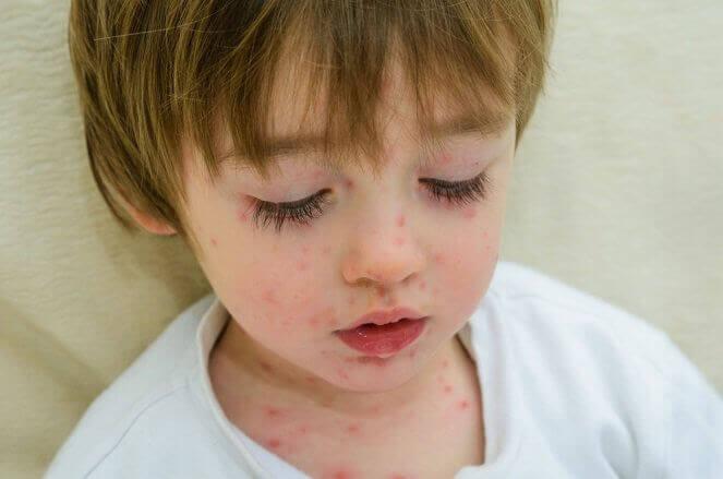 smittsamma sjukdomar: prickig pojke