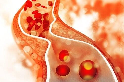 Högt kolesterol hos barn: illustration av blodkärl