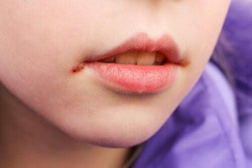 Munsår hos barn: Orsaker och behandling