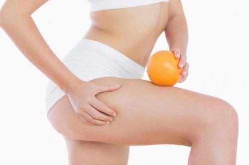 celluliter efter graviditeten: kvinna med apelsin