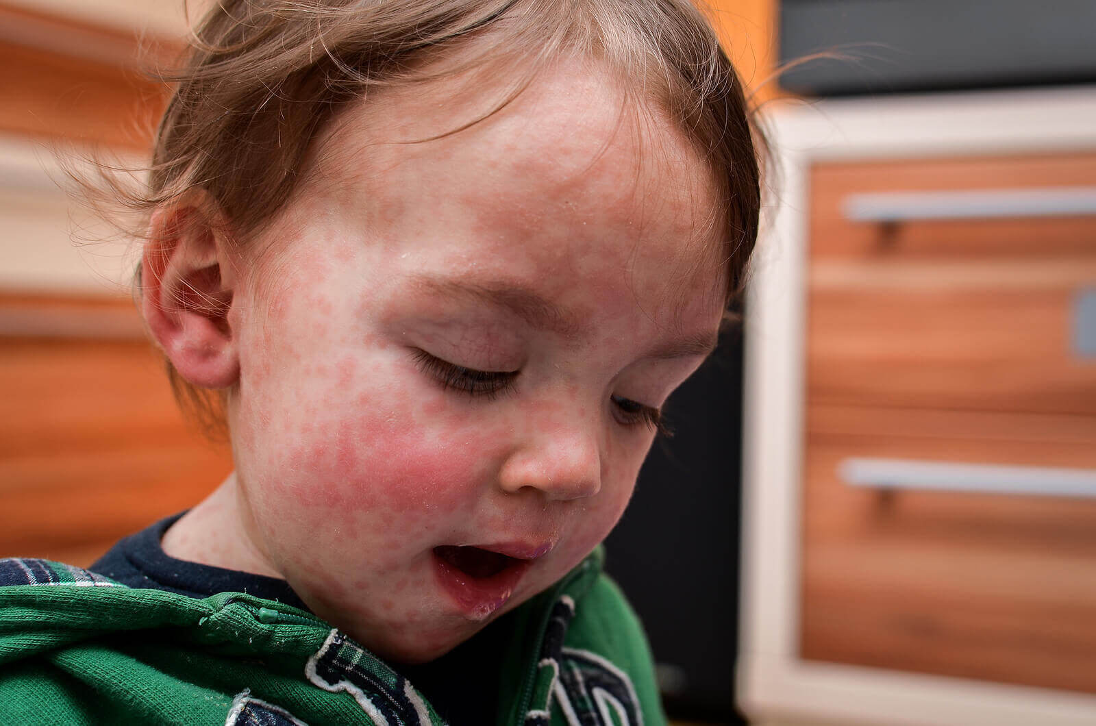 allergi mot komjölksprotein: barn med utslag i ansiktet