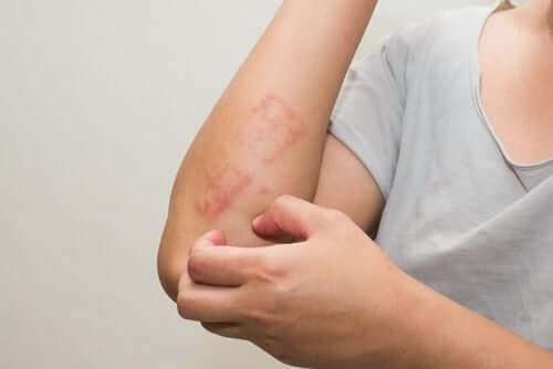 Psoriasis hos barn: Vad det är och hur barn påverkas