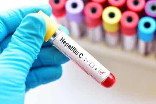 Hepatit C under graviditeten