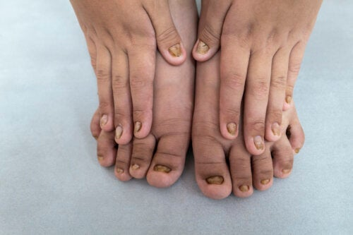 Vad innebär färgförändringar i barns naglar?